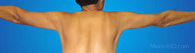 arm fat liposuction after