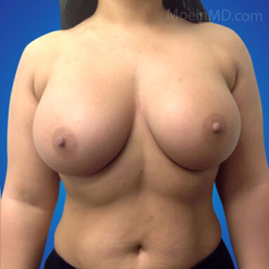 Breast Augmentation with silicone implants 575cc after