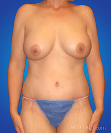 Full tummy tuck with liposuction of abdomen after