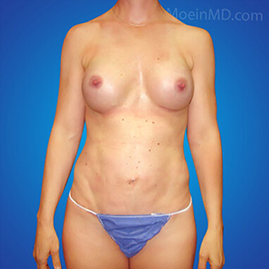 after image breast augment