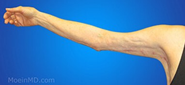 After picture of arm liposuction
