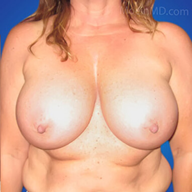 breast augmentation without lift after