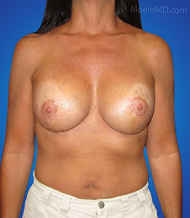 Breast Lift and augmentation with silicone gel after