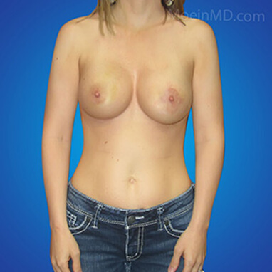breast augmentation over the muscle after pictures