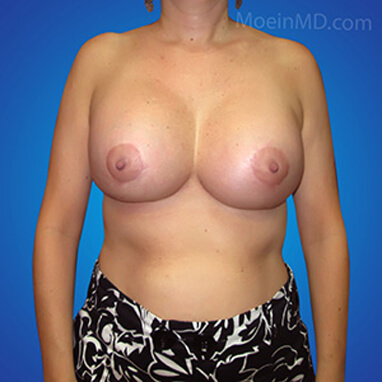 breast augmentation ideal implant after