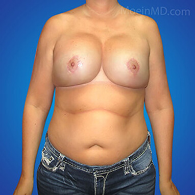 natural breast augmentation fat transfer after