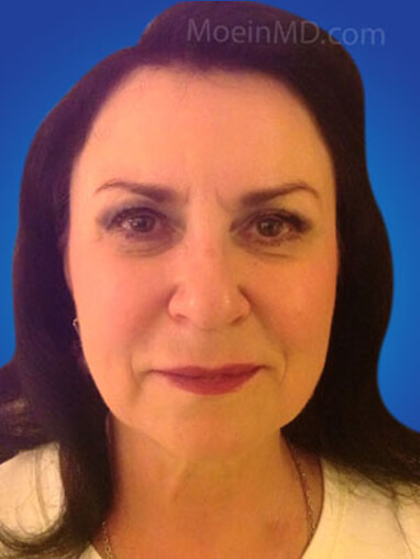 Total facial rejuvenation with deep cheek filler injection after