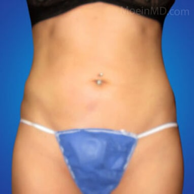Liposuction abdominal after