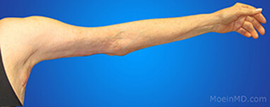 Arm liposuction recovery
