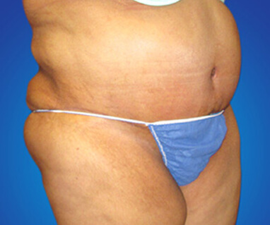 Full tummy tuck liposuction after