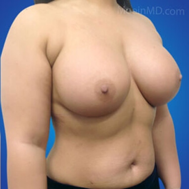 Breast Augmentation with silicone implants after image