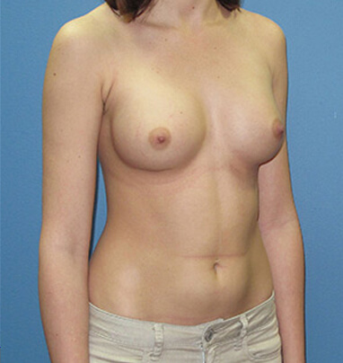 after photo breast augmentation in Los angeles