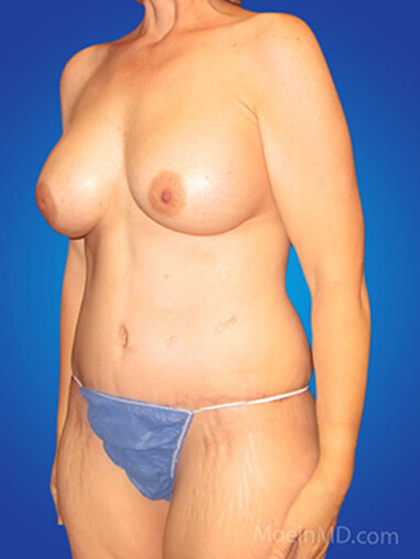 Breast augmentation with silicone implants after
