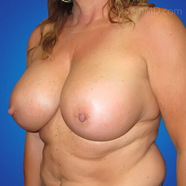 Breast Augmentation with Implants after