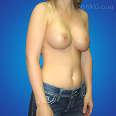 breast augmentation surgery after photos