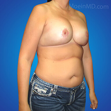transform after breast augmentation