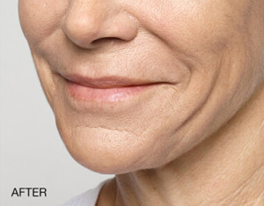 best dermal filler injector after