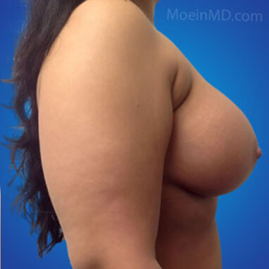 breast augmentation sizes after