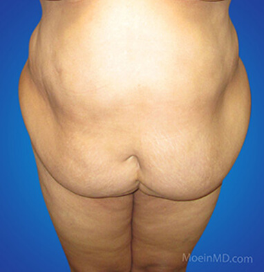 Full tummy tuck with associated liposuction to waist and abdomen before