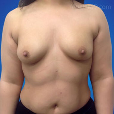 Breast Augmentation with silicone implants 575cc before