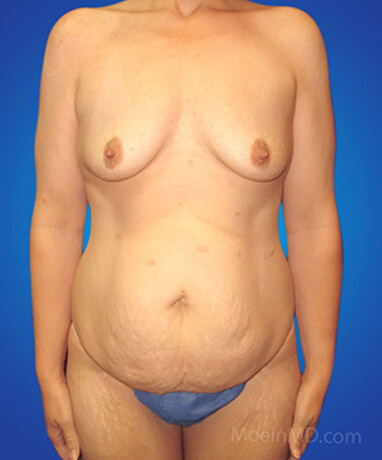 Full tummy tuck with liposuction of abdomen before
