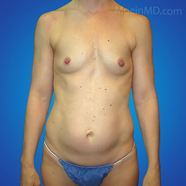 before image breast augment