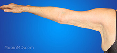 before picture of arm liposuction