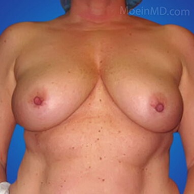breast augmentation without lift before