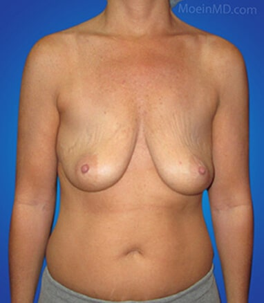 Breast Lift and augmentation with silicone gel before
