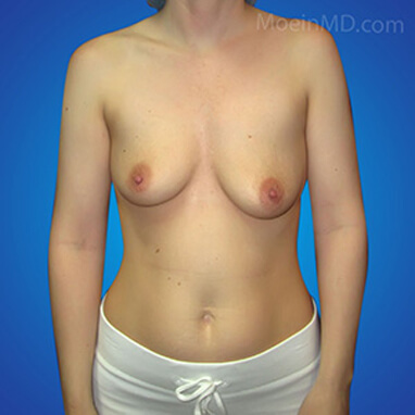 breast augmentation over the muscle before pictures