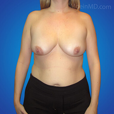 breast augmentation ideal implant before