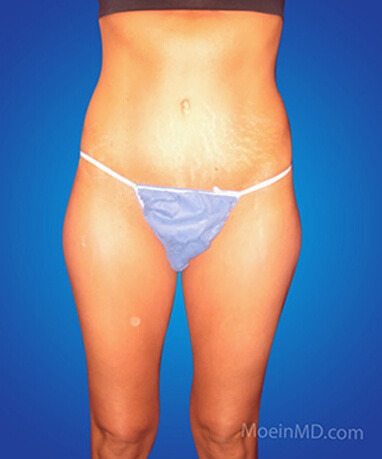 Liposuction of body before