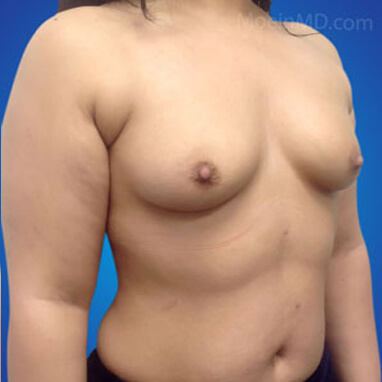 Breast Augmentation with silicone implants before image