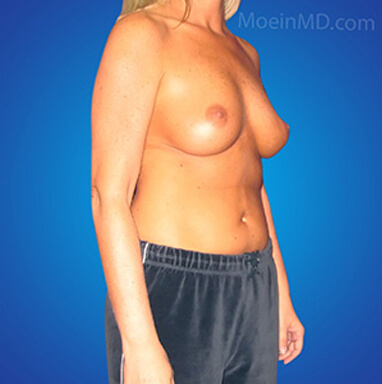 breast augmentation pictures before