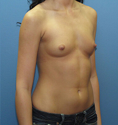 before photo breast augmentation in Los angeles