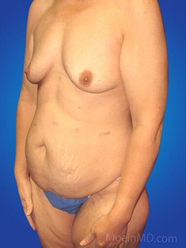Breast augmentation with silicone implants before