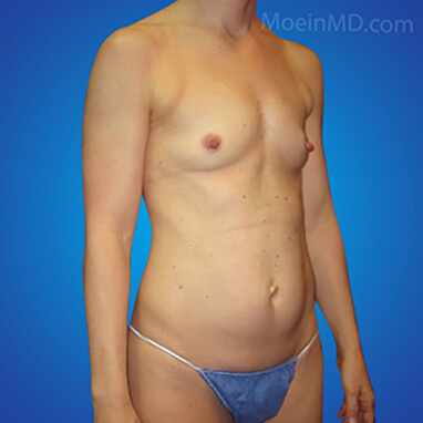 breast augmentation before pics