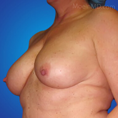 Breast Augmentation with Implants before