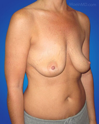 breast augmentation with silicone gel before