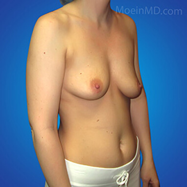 breast augmentation surgery before photos