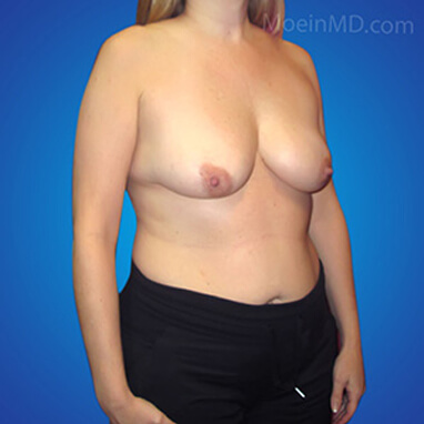 large breast augmentation before