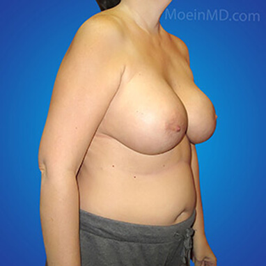 transform before breast augmentation