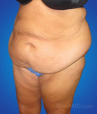 belly liposuction before