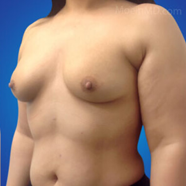 breast augmentation natural look before surgery