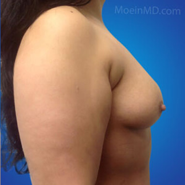 breast augmentation sizes before