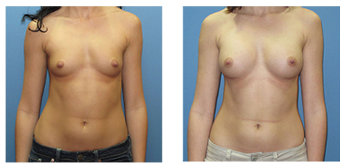 natural Breast Augmentation prices