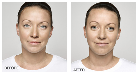 dermal filler injections los angeles