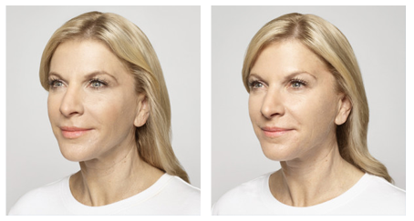 face filler injections los angeles