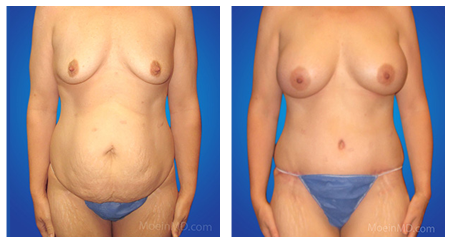 best tummy tuck doctor in los angeles
