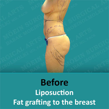 liposuction fat grafting to the breast before image